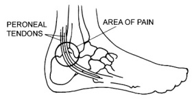 Peroneal Tendon Surgery