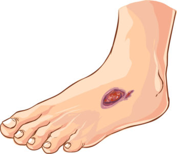 Common Diabetic Foot Complications Twin Cities Foot Doctor