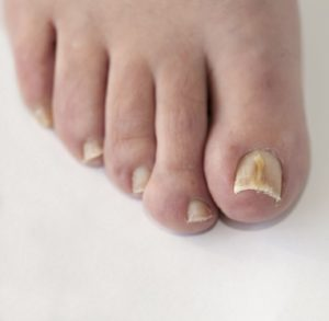 Top 7 Causes of Toenail Fungus and How to Fix Them | Foot Surgery in ...